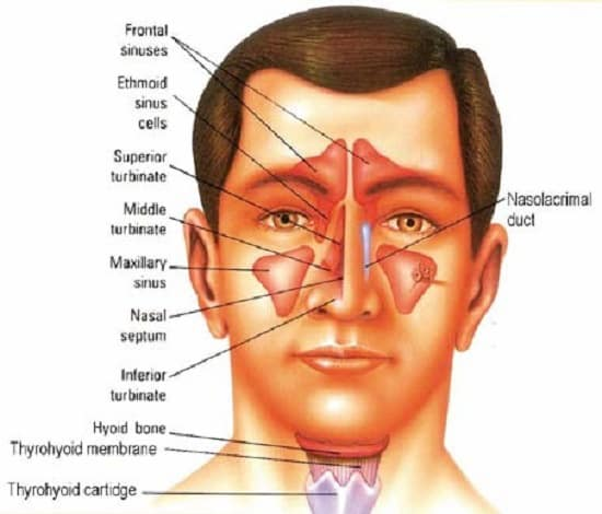 Remedios caseros tratar sinusitis