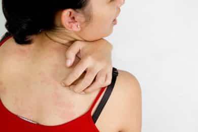 alergia en la piel , remedios caseros