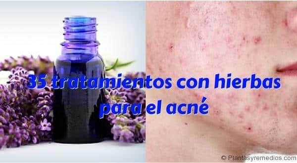35 tratamientos con hierbas para el acné
