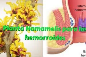 Planta Hamamelis para las hemorroides